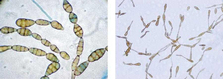 Рис. 9. Конидии гриба при сильном увеличении
